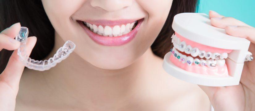 Choosing between invisalign or braces