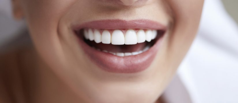 Want a Perfect Smile? 5 Things To Know Before Getting Veneers -