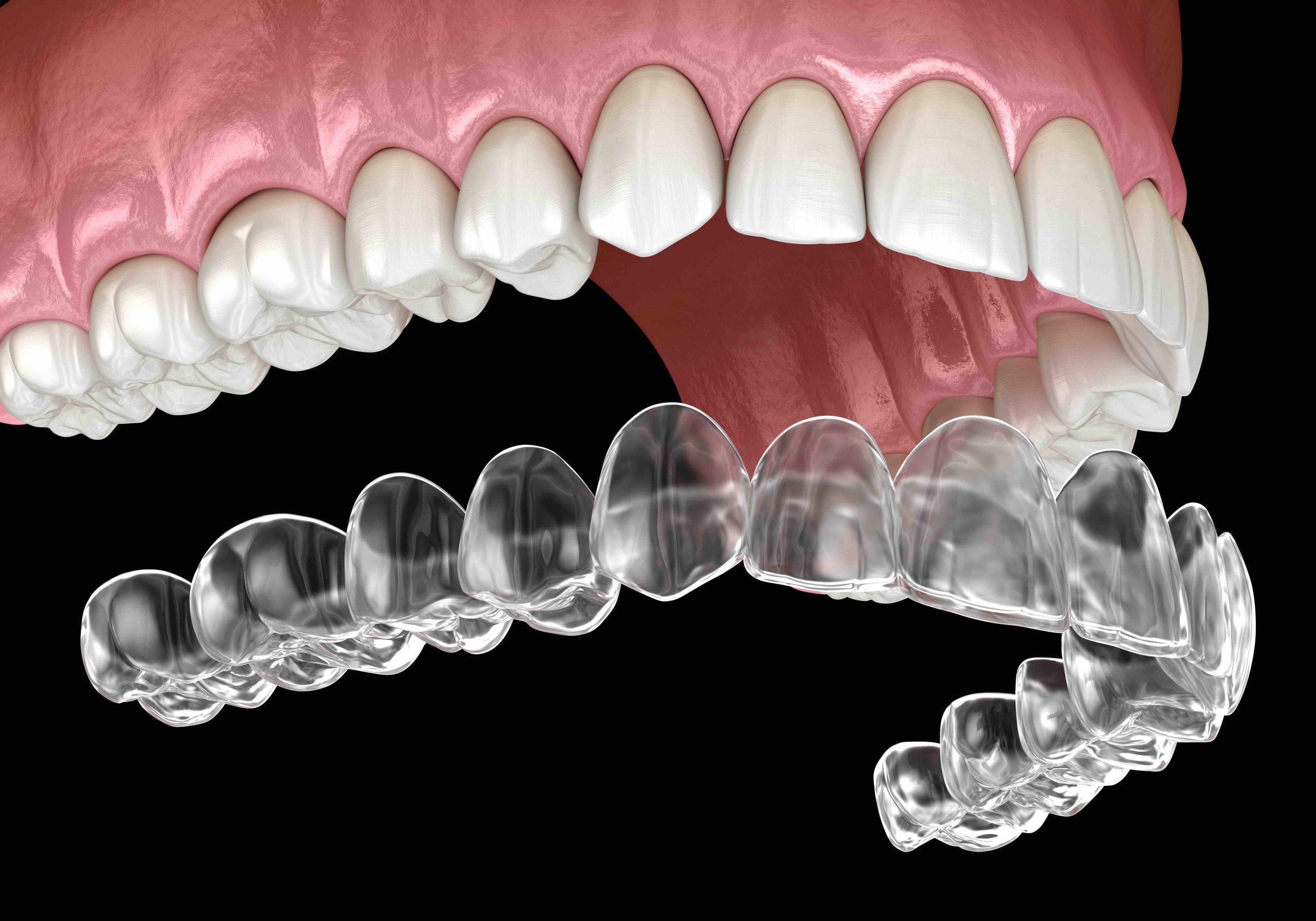 clear braces invisalign graphic