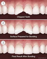 dental bonding chipped teeth
