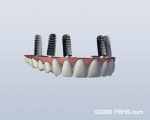 implant retained upper denture