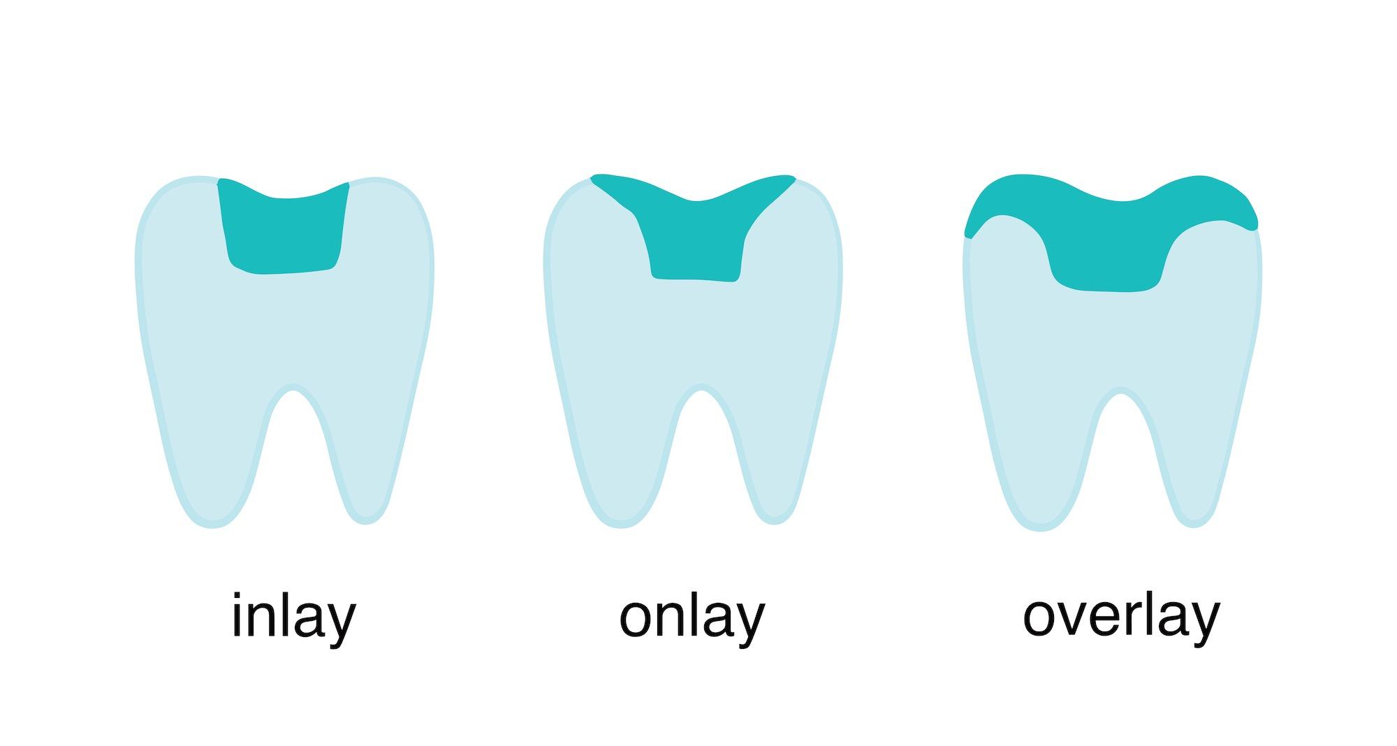 inlay onlay overlay thousand oaks dentistry