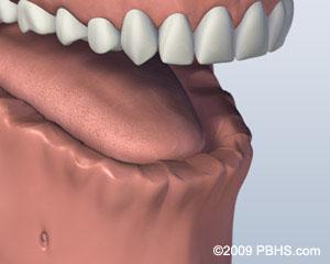 before bar attachment denture