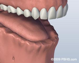 before screw attachment denture
