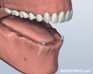 graphic of ball attachment denture procedure thousand oaks dentist