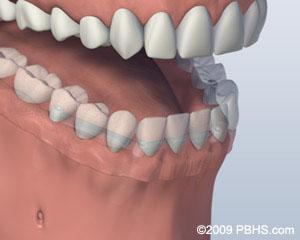 bar attachment denture post procedure