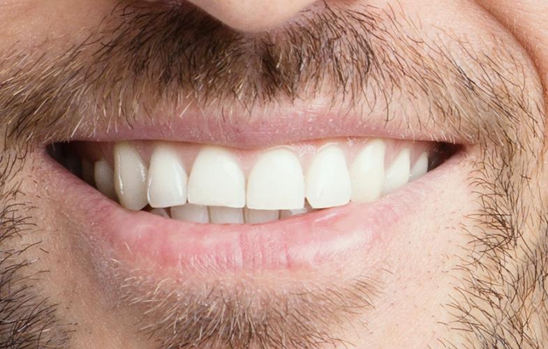 opalescence teeth whitening smile