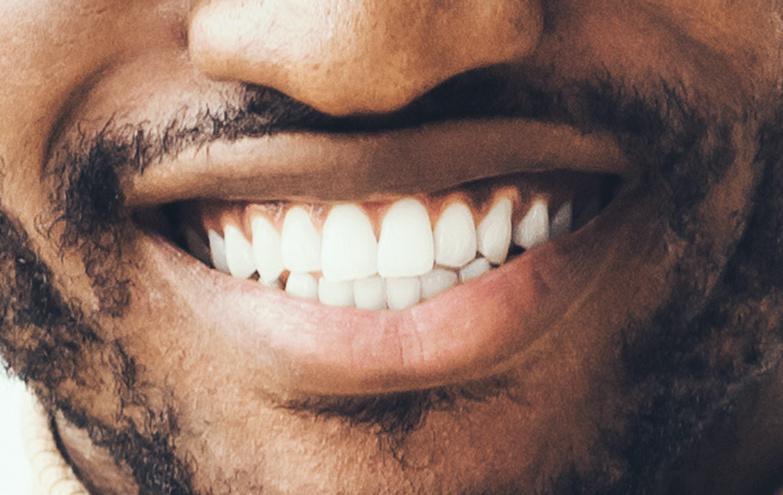 teeth whitening smile thousand oaks dental