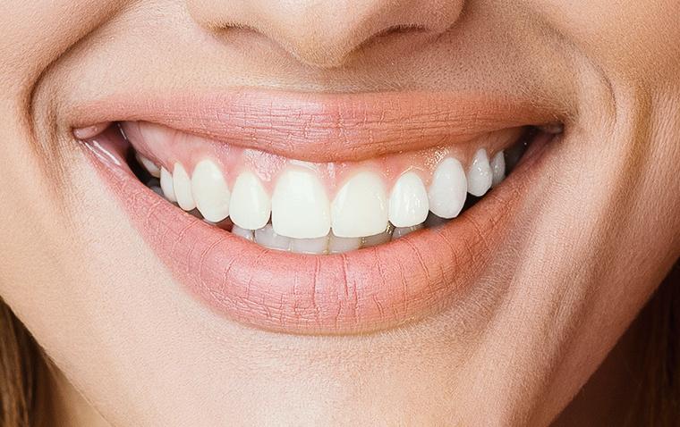 zoom teeth whitening thousand oaks